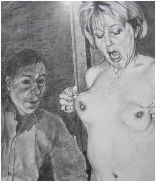 breast pinching