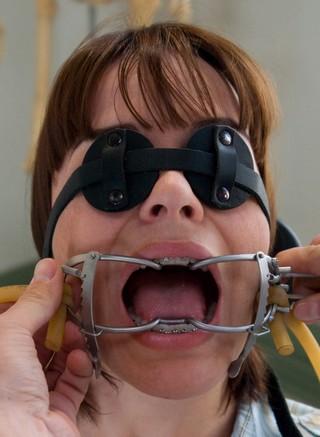 Mouth gag Bondage dental