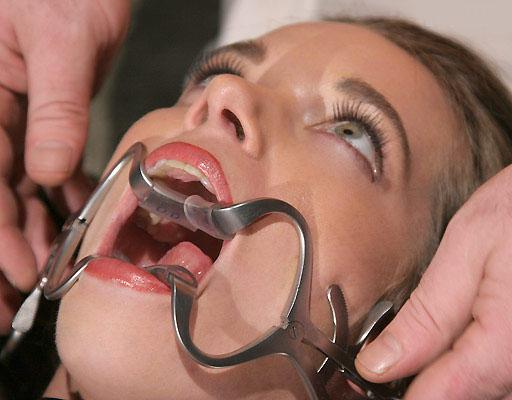 mouth forced open with dental gag