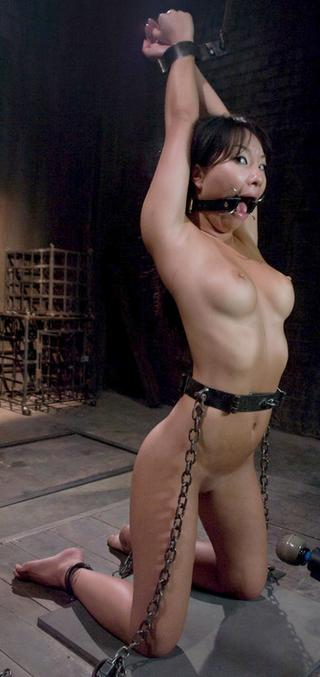 open-mouth gag